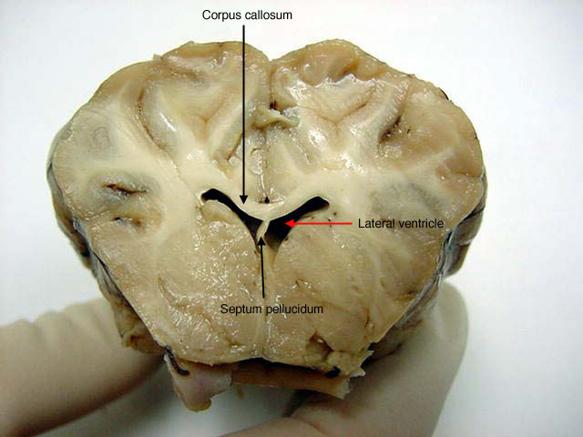 Sheep Brain