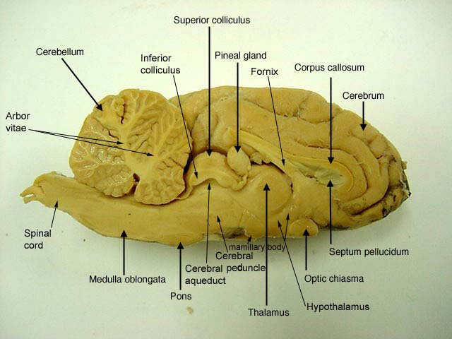 Sheep brain anatomy ventral - photo#52