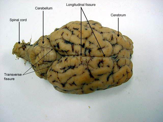 Sheep Brain Anatomy Diagram Images Human Body Anatomy