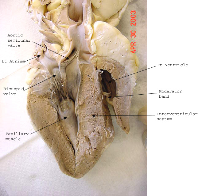 List Of Synonyms And Antonyms Of The Word Human Heart Dissection