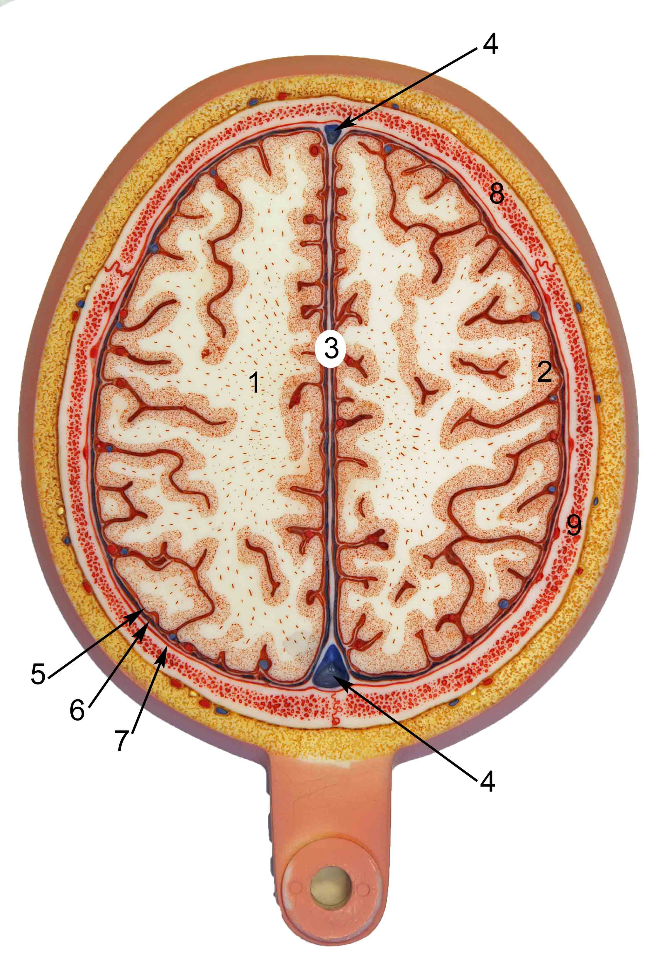 Brain Axial Section