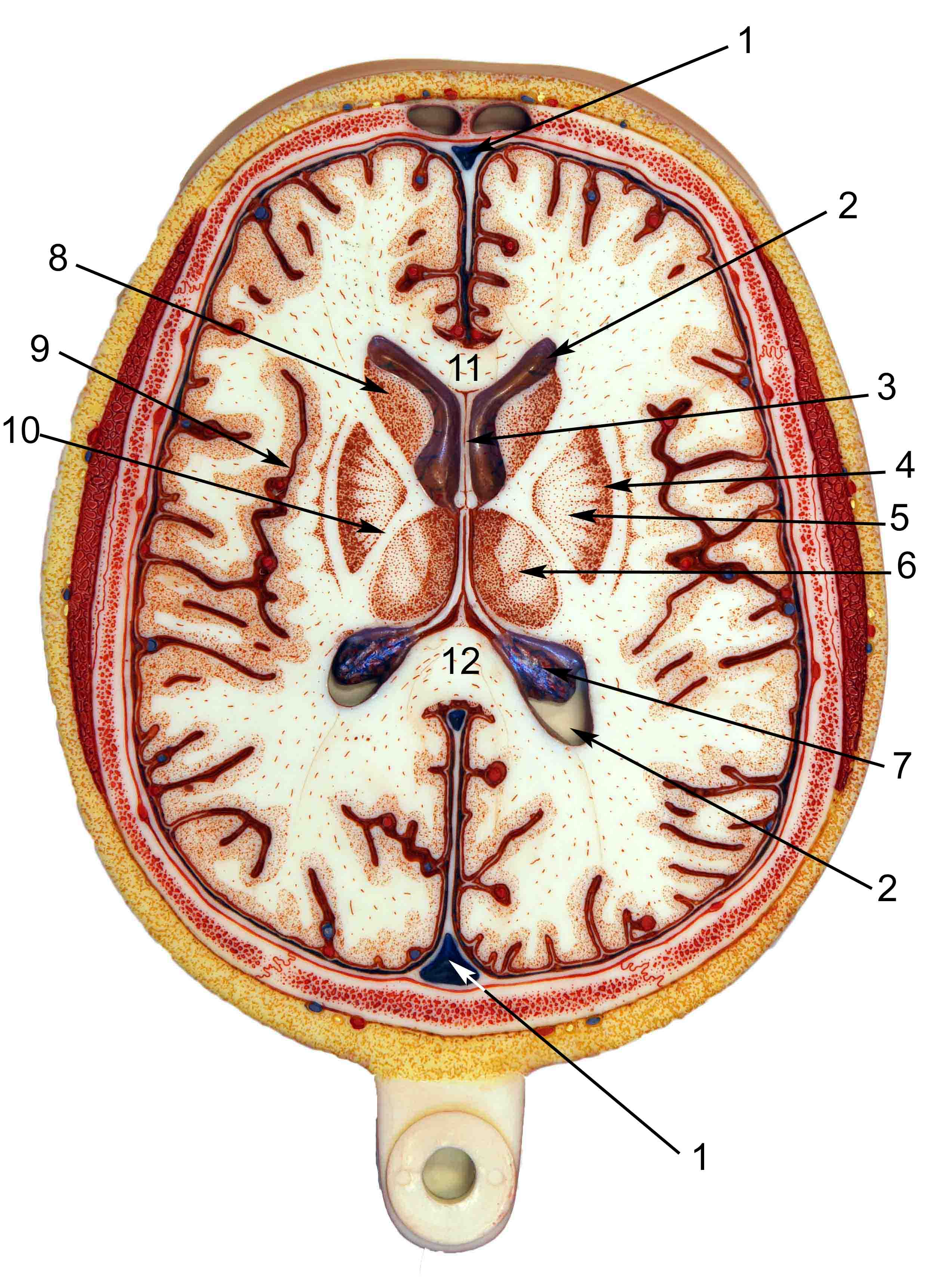Axial View Brain Diagram - Search For Wiring Diagrams •